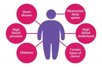 Shocking Obesity Facts